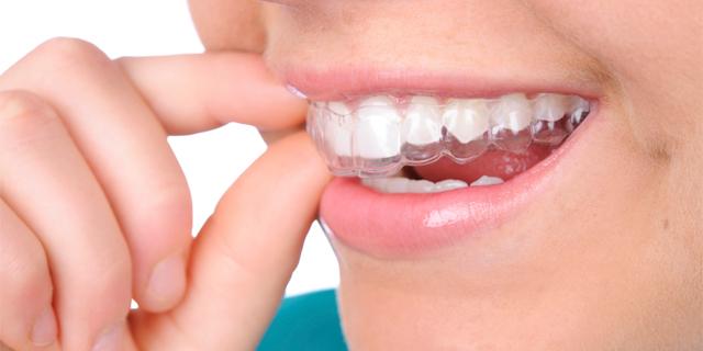 Ortodoncia invisible en tucumán
